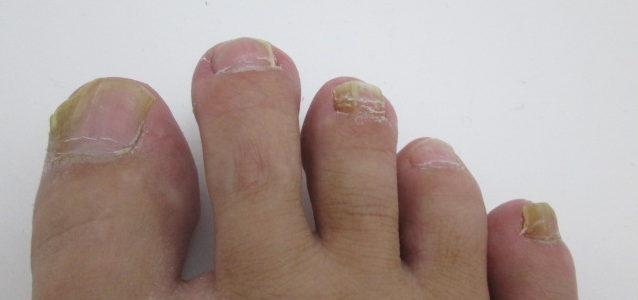 水虫難波(なんば)皮膚科